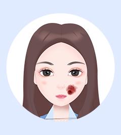 上海治疗血管瘤好的医院-上海虹桥医院胎记科专业治疗血管瘤