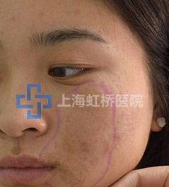 上海胎记医院-上海虹桥医院胎记科专业治疗咖啡斑