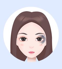 上海胎记医院-上海虹桥医院胎记科专业治疗太田痣